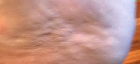 la cellulite de type fibreuse