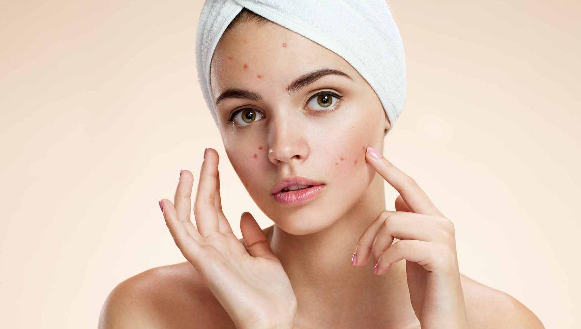supprimer les boutons d'acnés