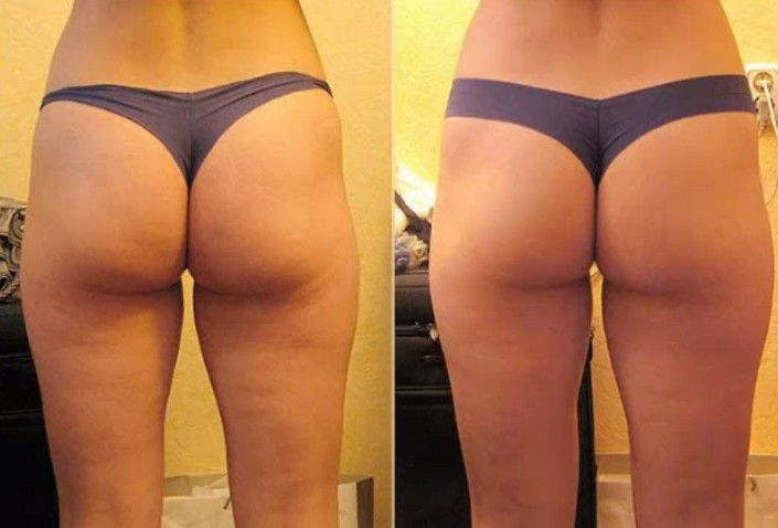 quelle type de cellulite